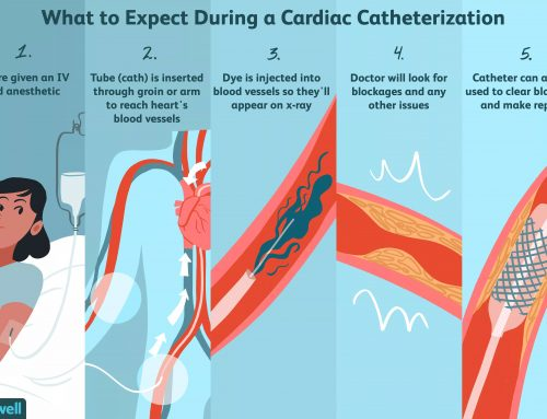 What to expect during Cardiac Catheterization